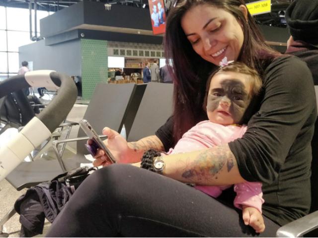 U.S. baby with 'Batman' birthmark gets groundbreaking treatment in Russia