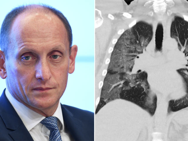 People getting more Covid scans leads to more lung cancers being detected – 1st Russian Honorary Fellow of top US surgical society