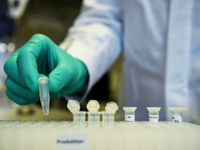 German company says its Covid-19 vaccine could be ready for use by September 2021